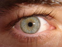 Over The Counter Eye Drops Raise Concern Over Antibiotic