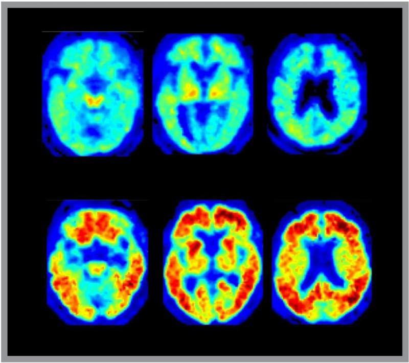 Mild Cognitive Impairment Therapeutic