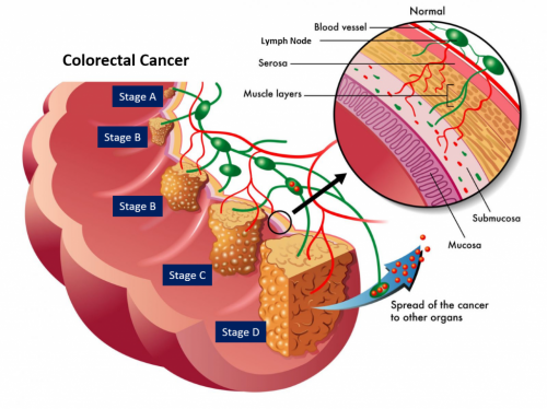 Biomarker Discovery Offers Clearer Prognosis For Bowel And Rectal Cancer Patients