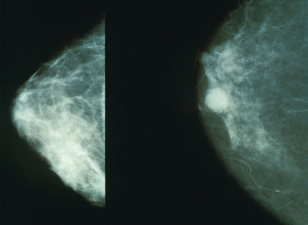 Beneficial bacteria may protect breasts from cancer
