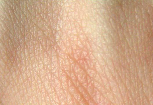skin.