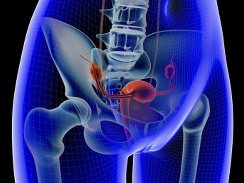 Surgery Chemo Best For Elderly With Advanced Ovarian Cancer