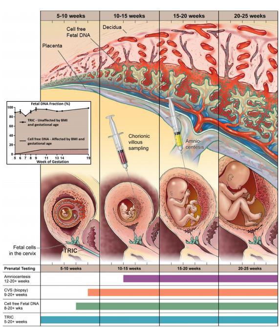 Study reveals non-invasive prenatal genetic test is accurate five weeks  into pregnancy