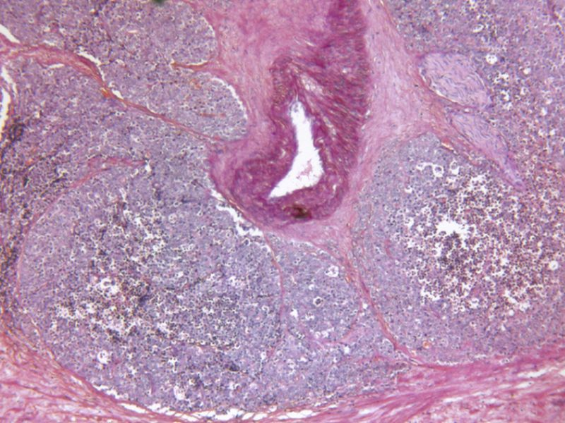 Prostate Cancer Tied To Higher Colorectal Cancer Risk