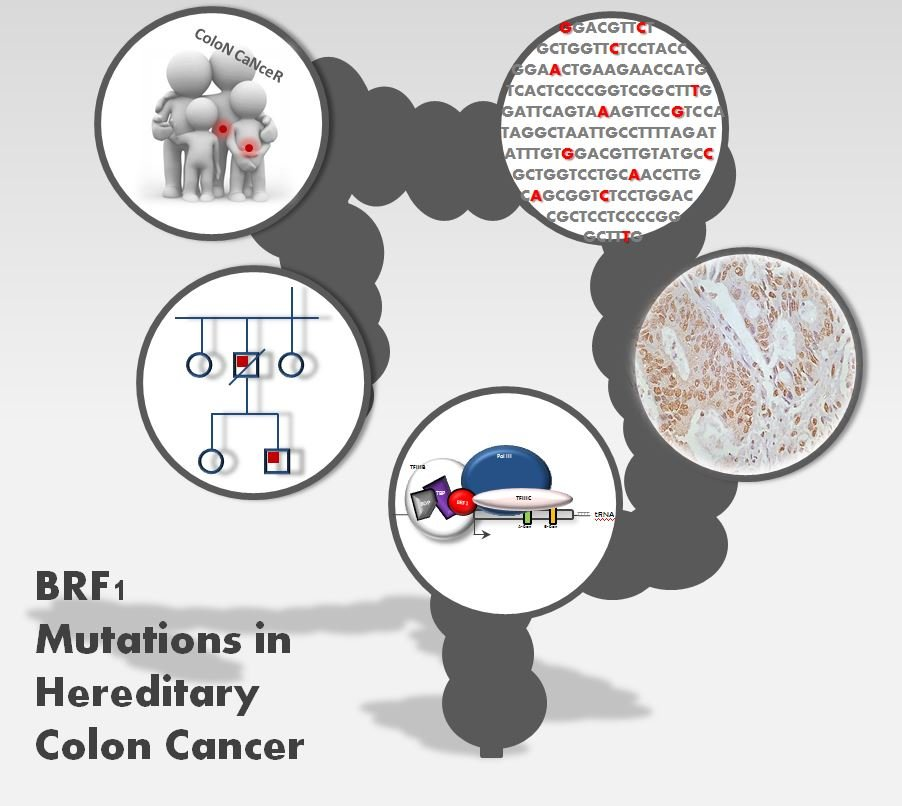 A New Genetic Marker Accounts For Up To 1 4 Percent Of Cases Of Hereditary Colon Cancer