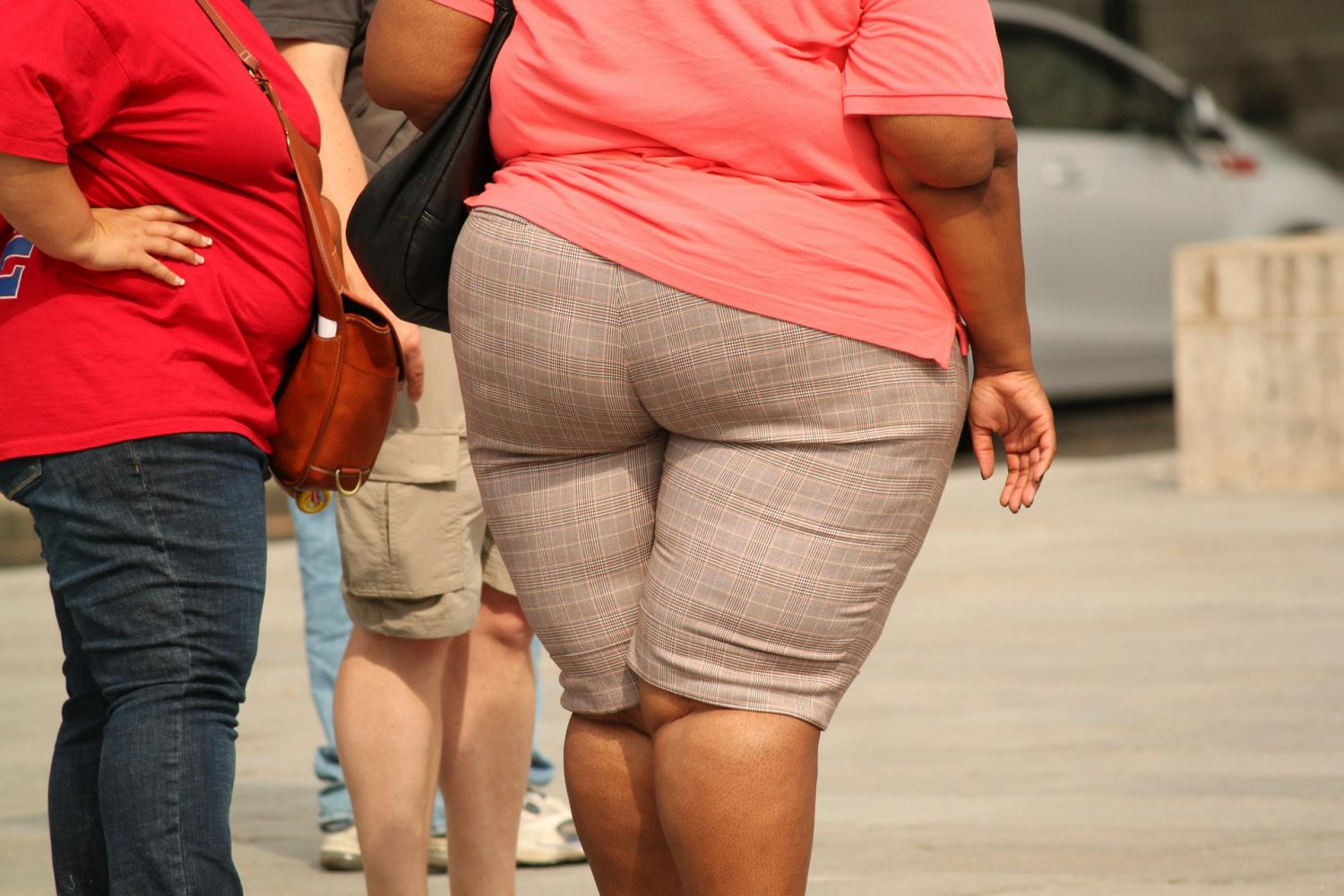 Why Do Some Obese People Have Healthier Fat Tissue Than Others