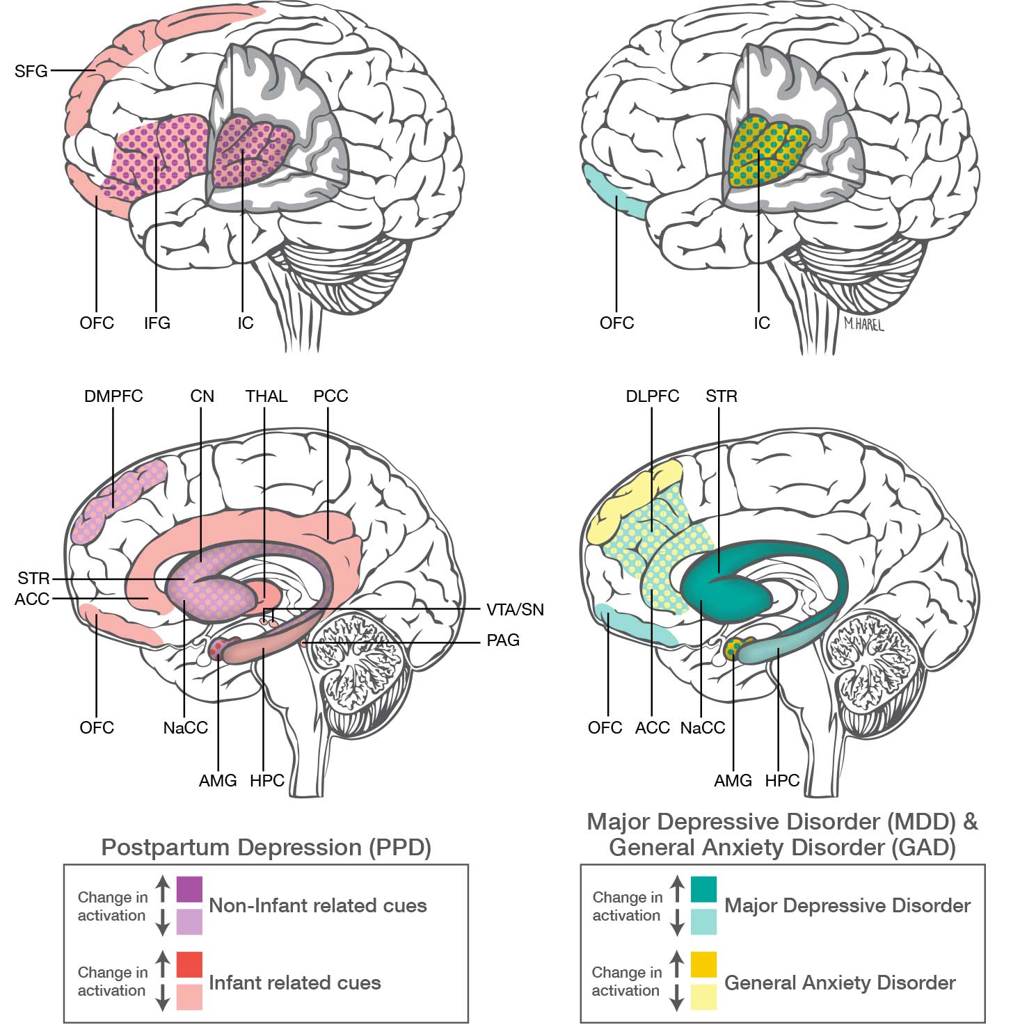 Postpartum Depression And Anxiety Distinct From Other Mood Disorders Brain Studies Suggest