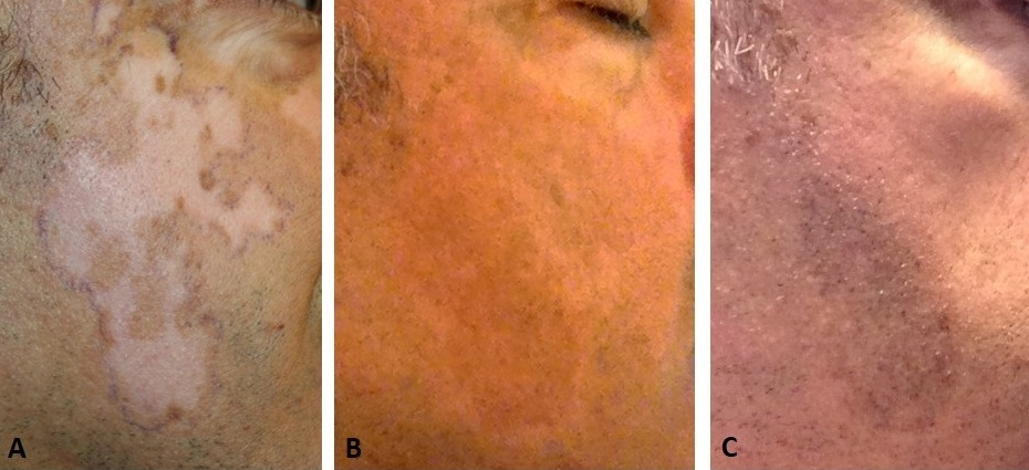 Mktp Surgery Has Long Term Benefit For Restoring Skin Pigmentation In Vitiligo Patients