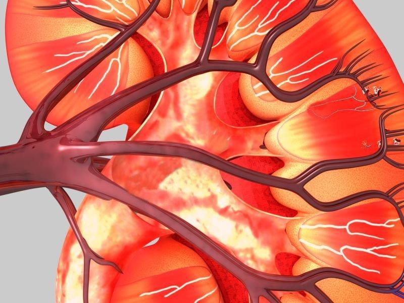 Type 2 Diabetes Ups Risk Of Renal Cancer In Women But Not Men
