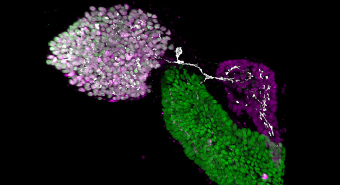 photo of Researchers map the formation of ducts connecting digestive organs in zebrafish image