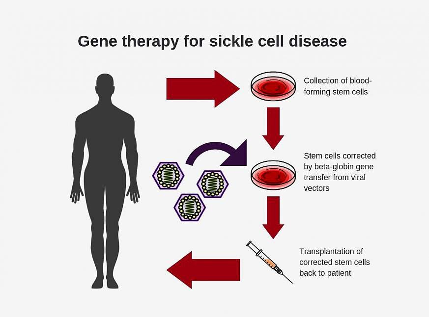Researchers create new viral vector for improved gene ...