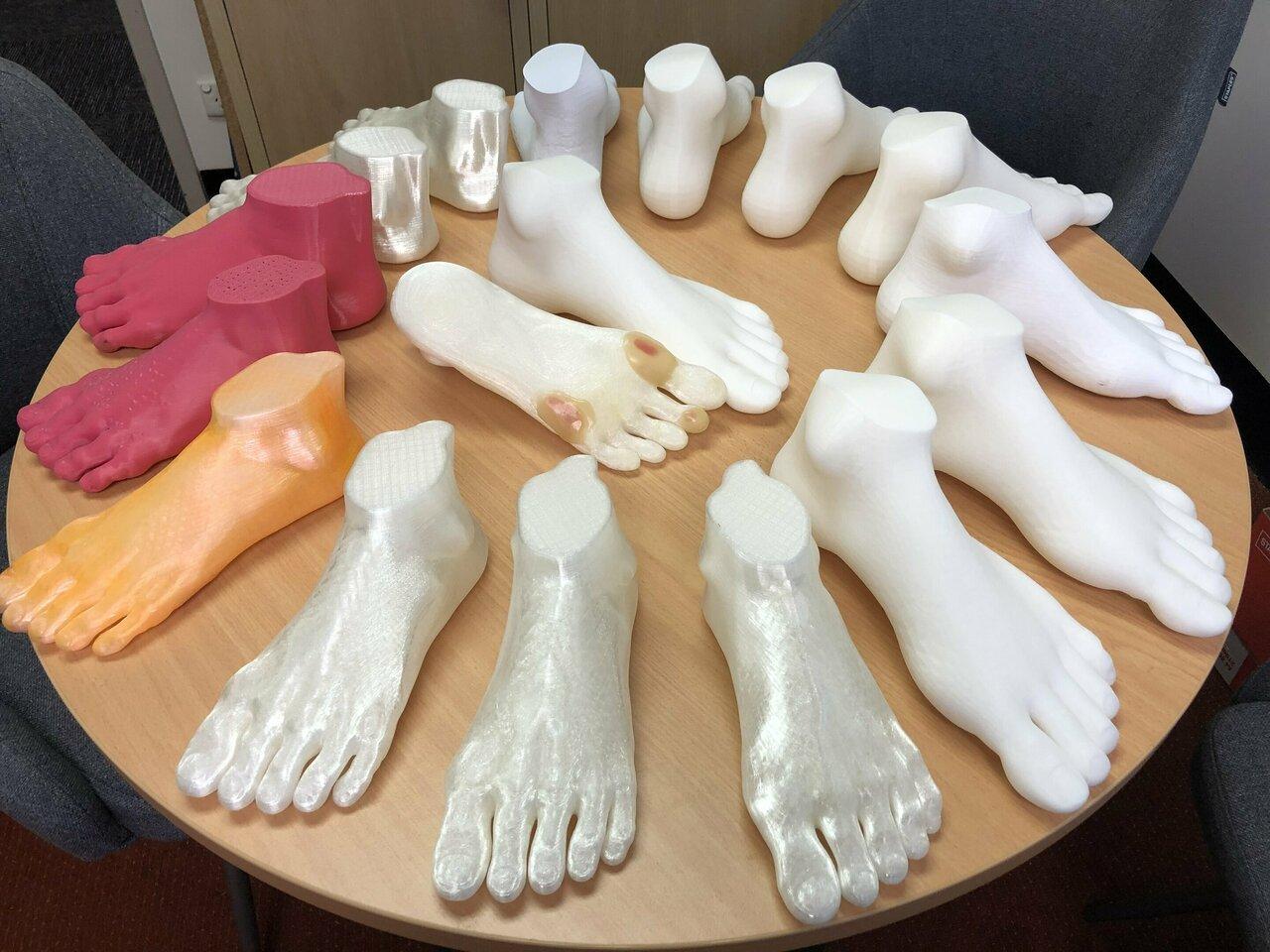 World First 3d Printed Feet Steps Up Treatment For Diabetics