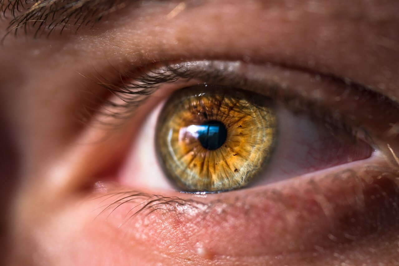 Eye Infection by Untreated Bacterial Sinus Infection