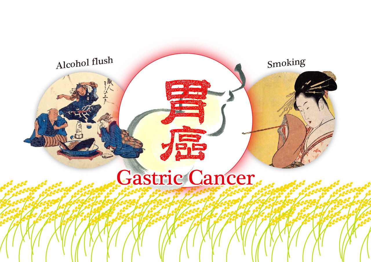 gastric cancer asian