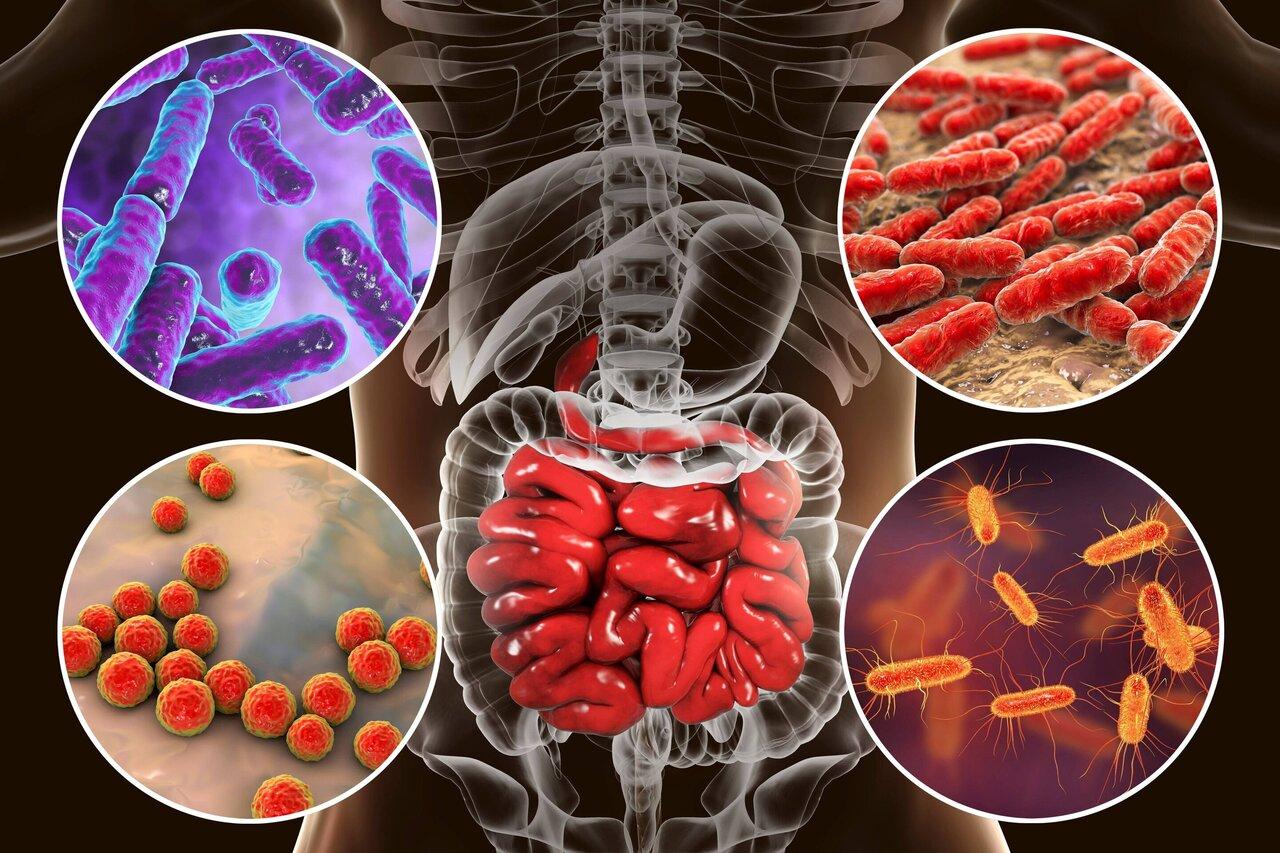 شاخص سلامت میکروبیوم روده ، نشانگر سلامت یا بیماری فرد GMHI