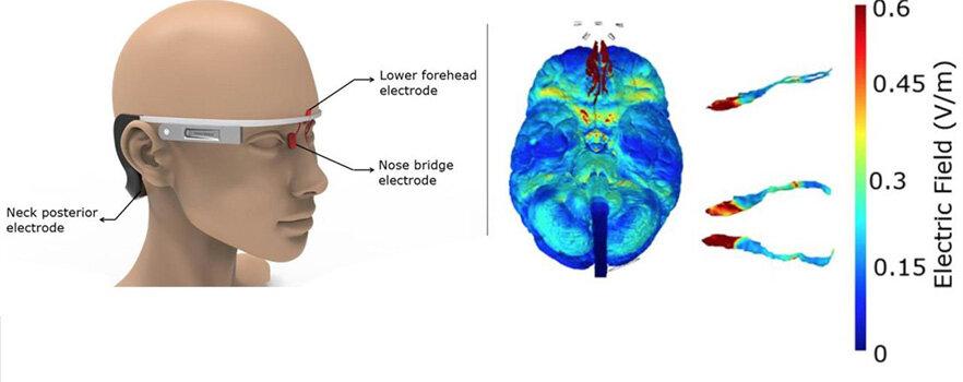 Google-glass-like electrical stimulator to zap Alzheimer's Disease