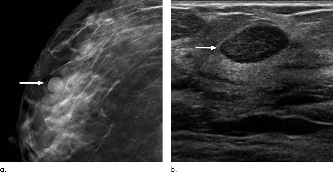 Six Month Follow Up Appropriate For Bi Rads 3 Findings On Mammography