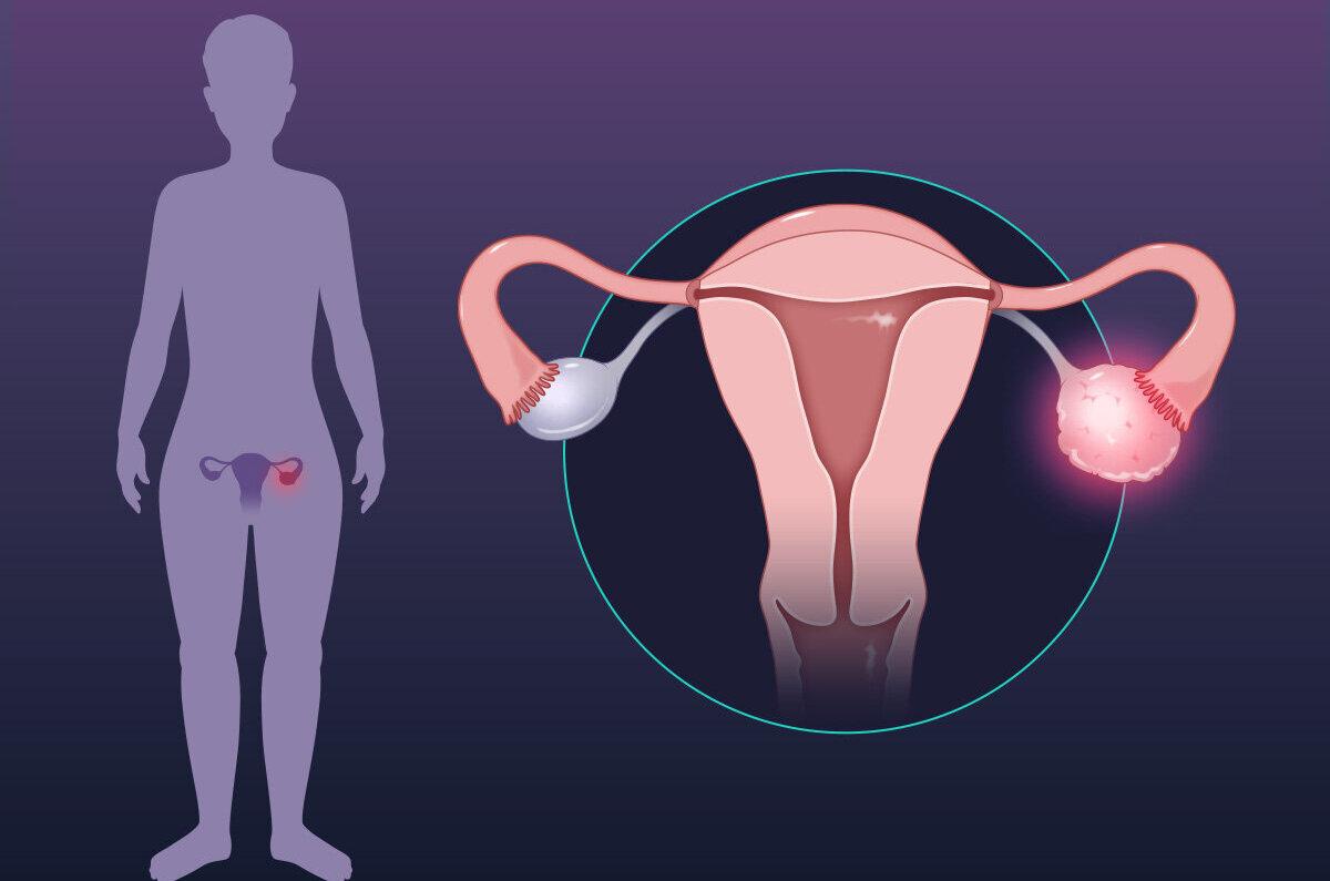 ovarian cancer new treatment 2021