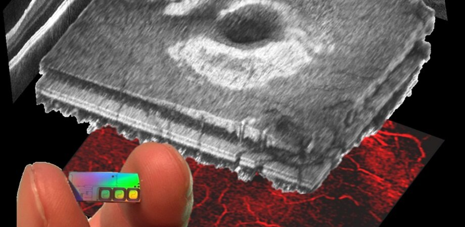Bright prospects for OCT retinal scans at 30