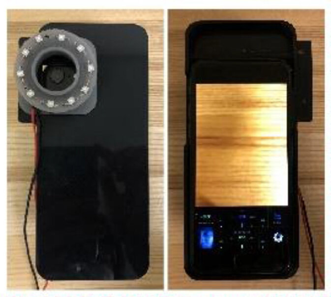 Smartphone camera can illuminate bacteria causing acne, dental plaques