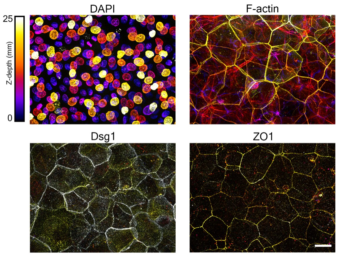 photo of Uncovering cellular mechanisms driving epidermal form and function image