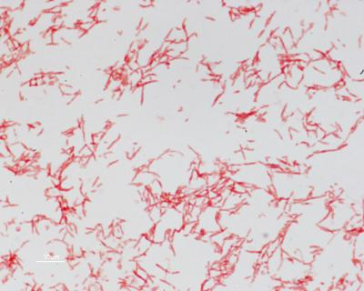 How Diarrheal Bacteria Cause Some Colon Cancers Revealed In Mouse Studies