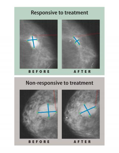 Estrogen Lowering Drugs Reduce Mastectomy Rates For Breast Cancer