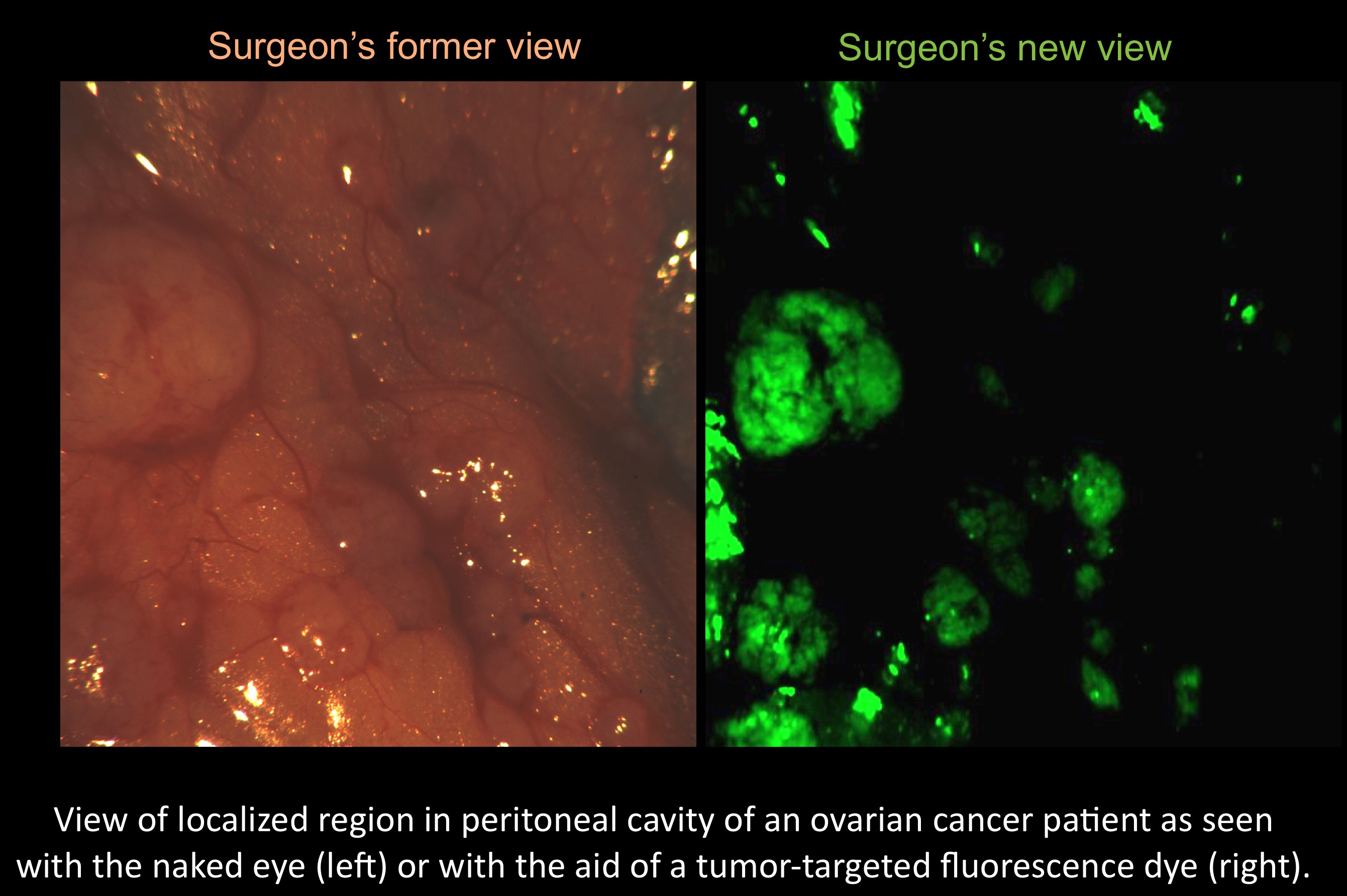 New Technology Used In First Fluorescence Guided Ovarian Cancer Surgery