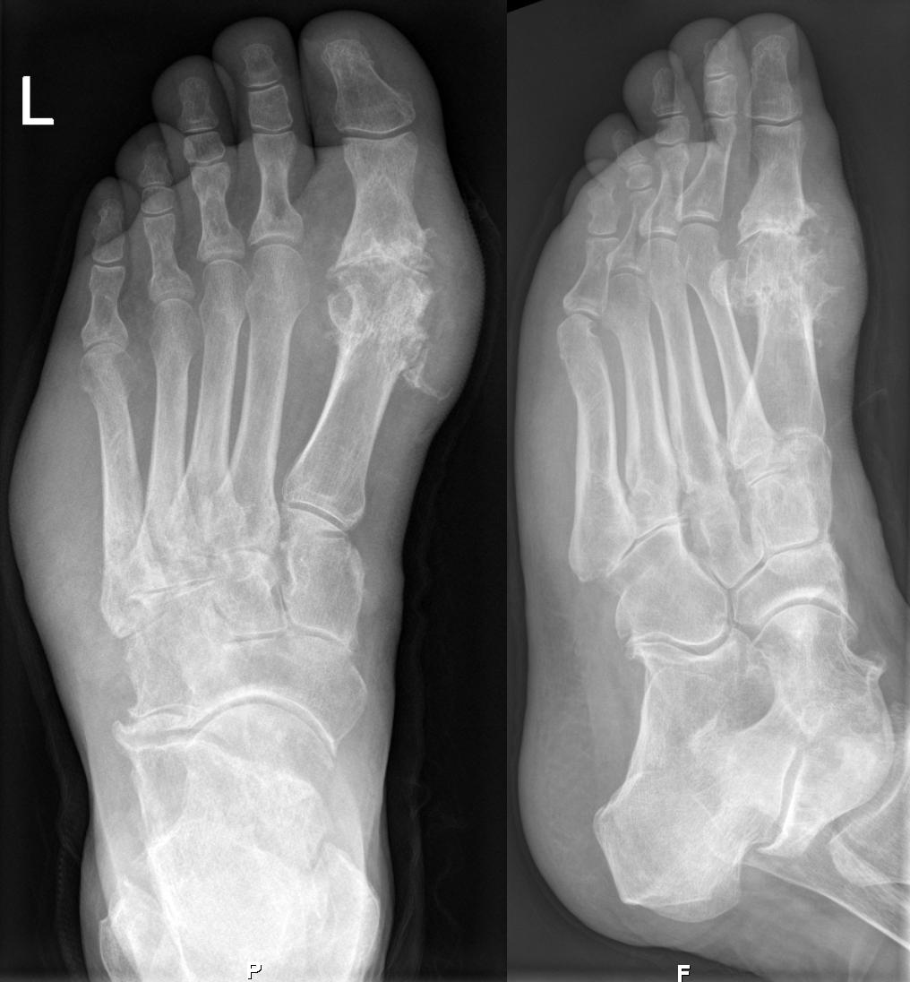 edema picior de la varicoză