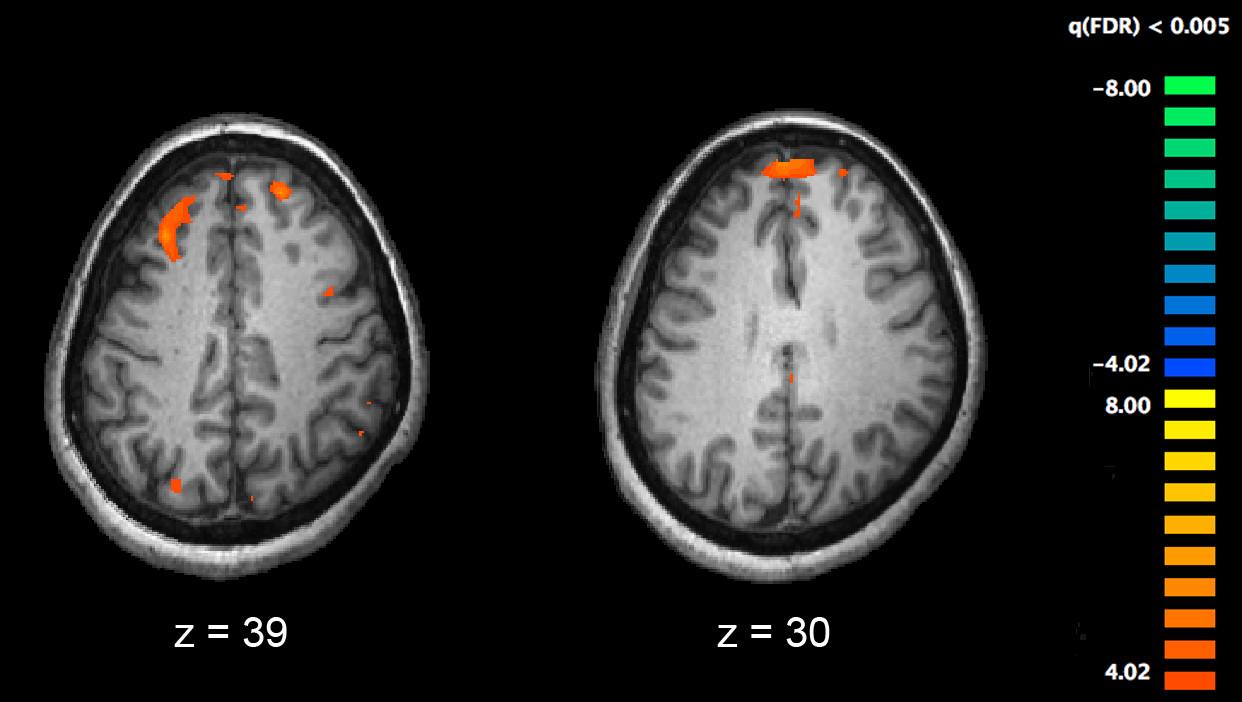 Schizophrenia second only to age as greatest risk factor for COVID-19 death