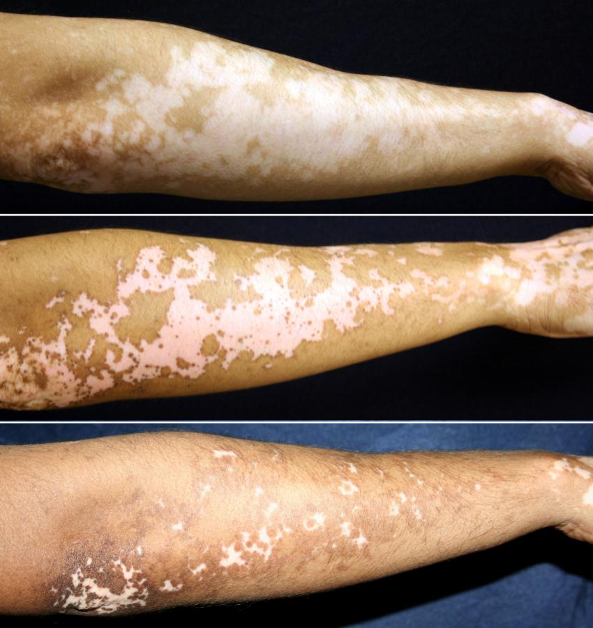 Vitiligo Treatment Holds Promise For Restoring Skin Pigmentation