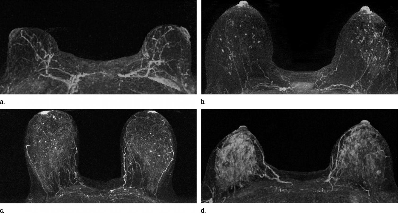 Mri Shows Potential To Improve Breast Cancer Risk Prediction
