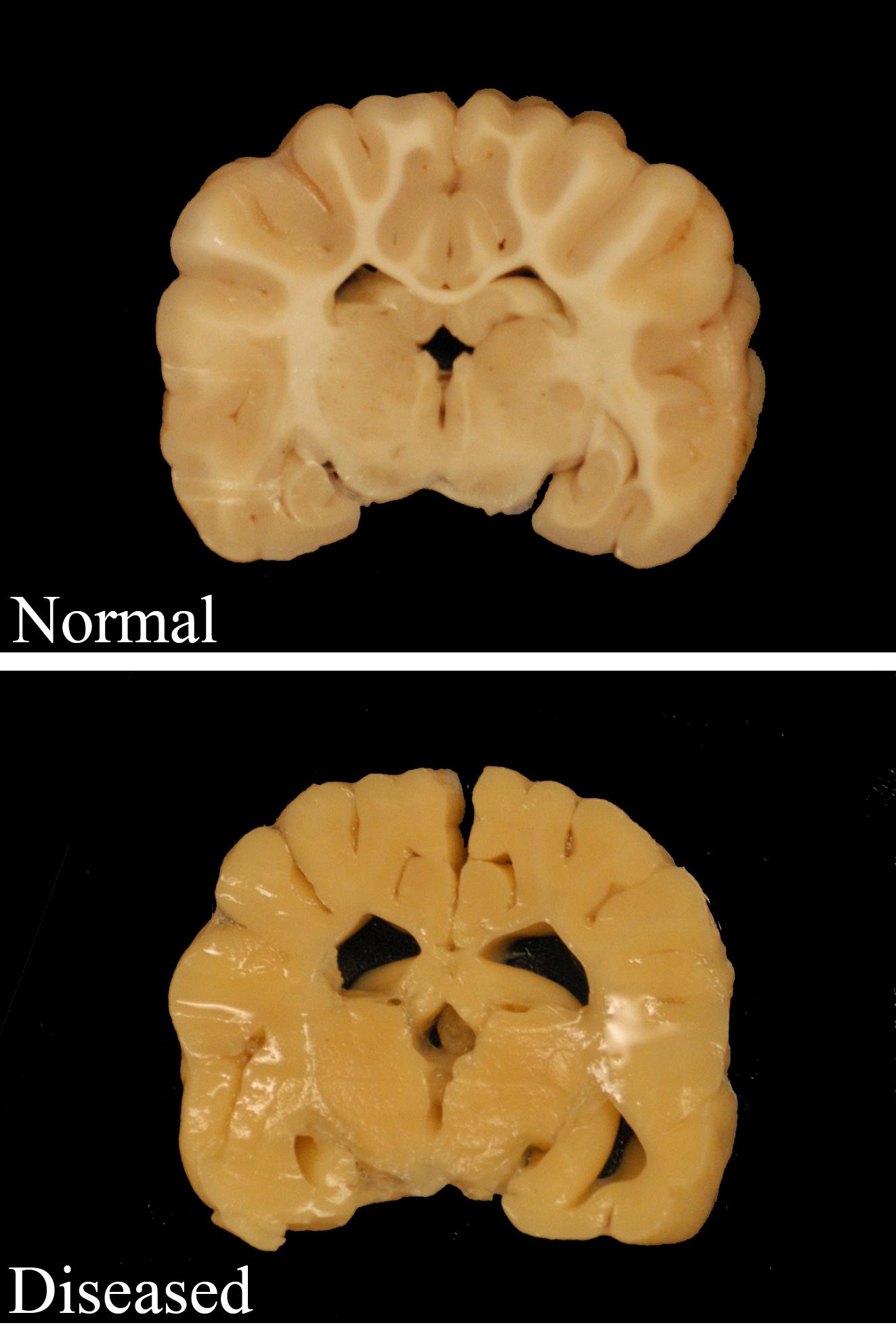 Rare neurological disease shines light on health of ...