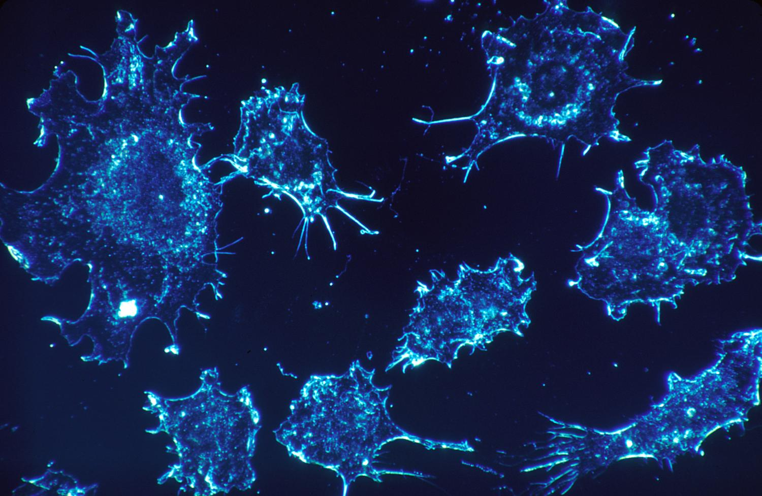 'Frameshifting' therapy for mast cell cancers reduces size, spread