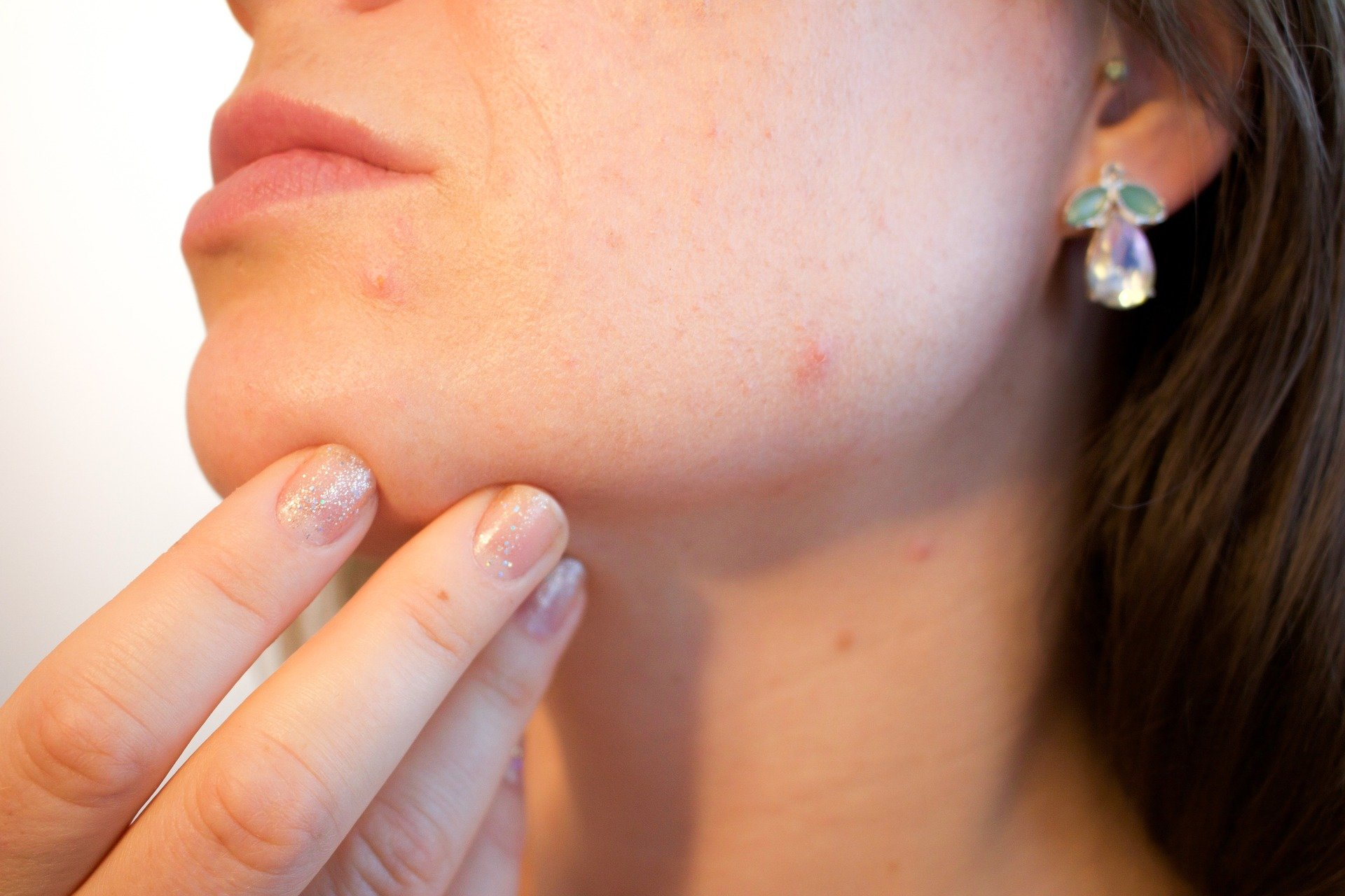 Not all acne is equal: Scientists reveal strains of C. acnes that promote skin health