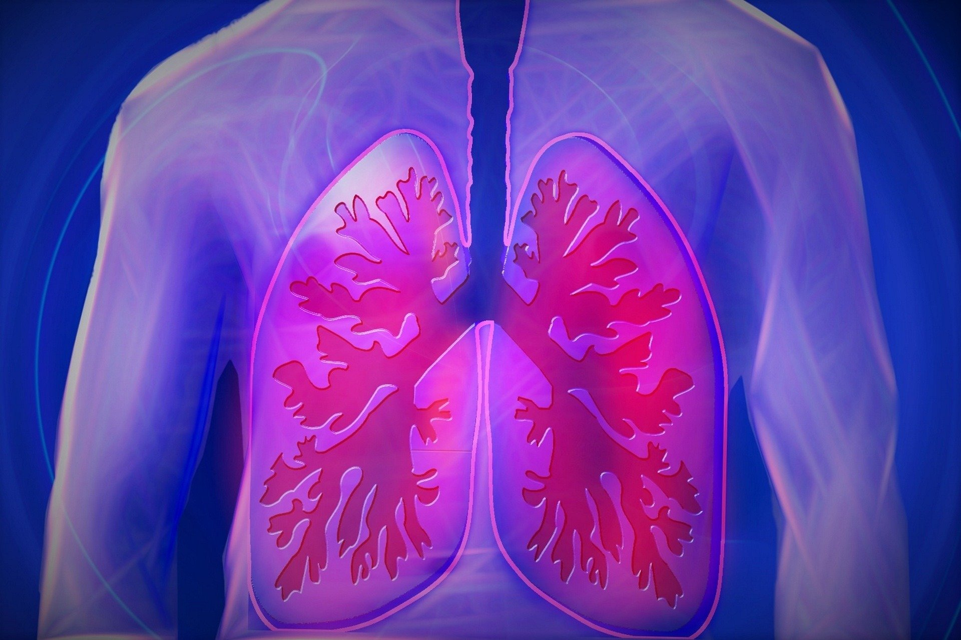 Weight Gain Associated with Accelerated Lung Function Decline in Adulthood