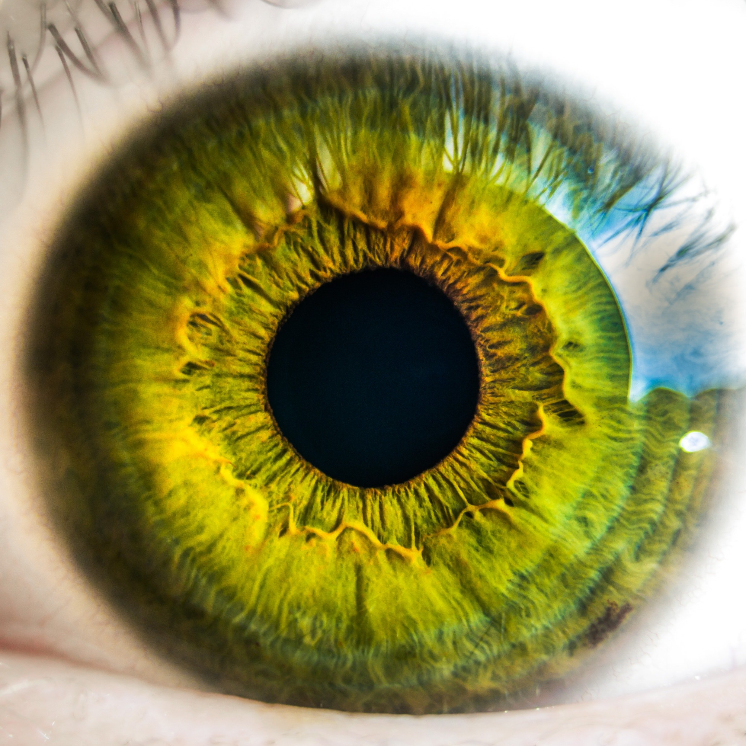 Calcifications in the eye increase risk for progression to