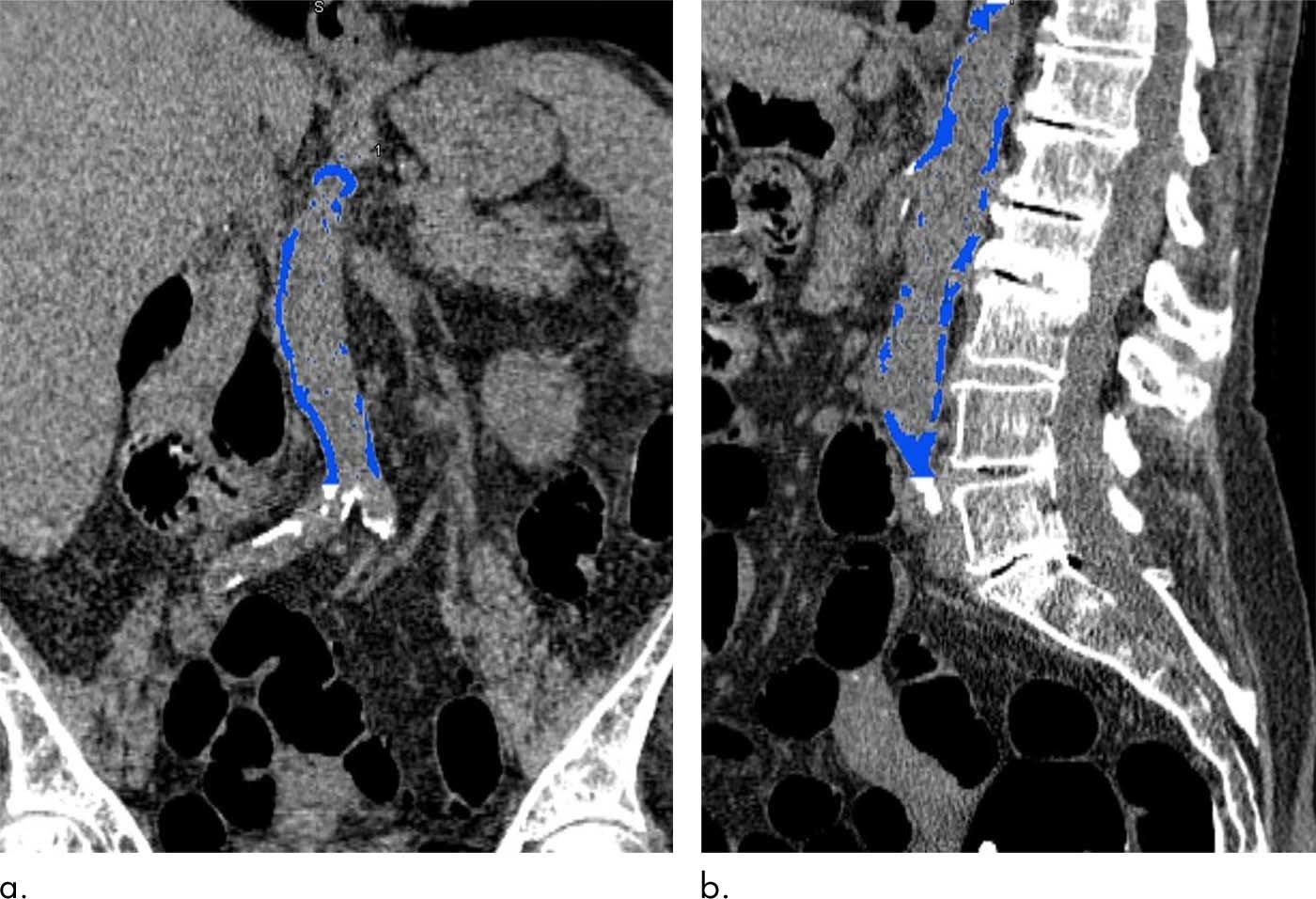aorta arthrosis kezelése