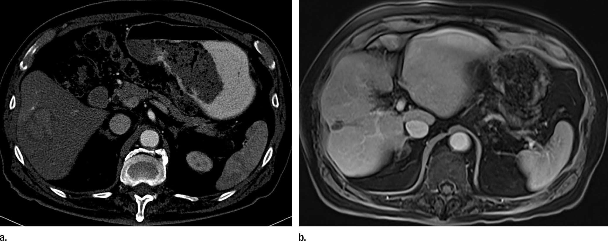 Radiotherapy Offers New Treatment Option For Liver Cancer