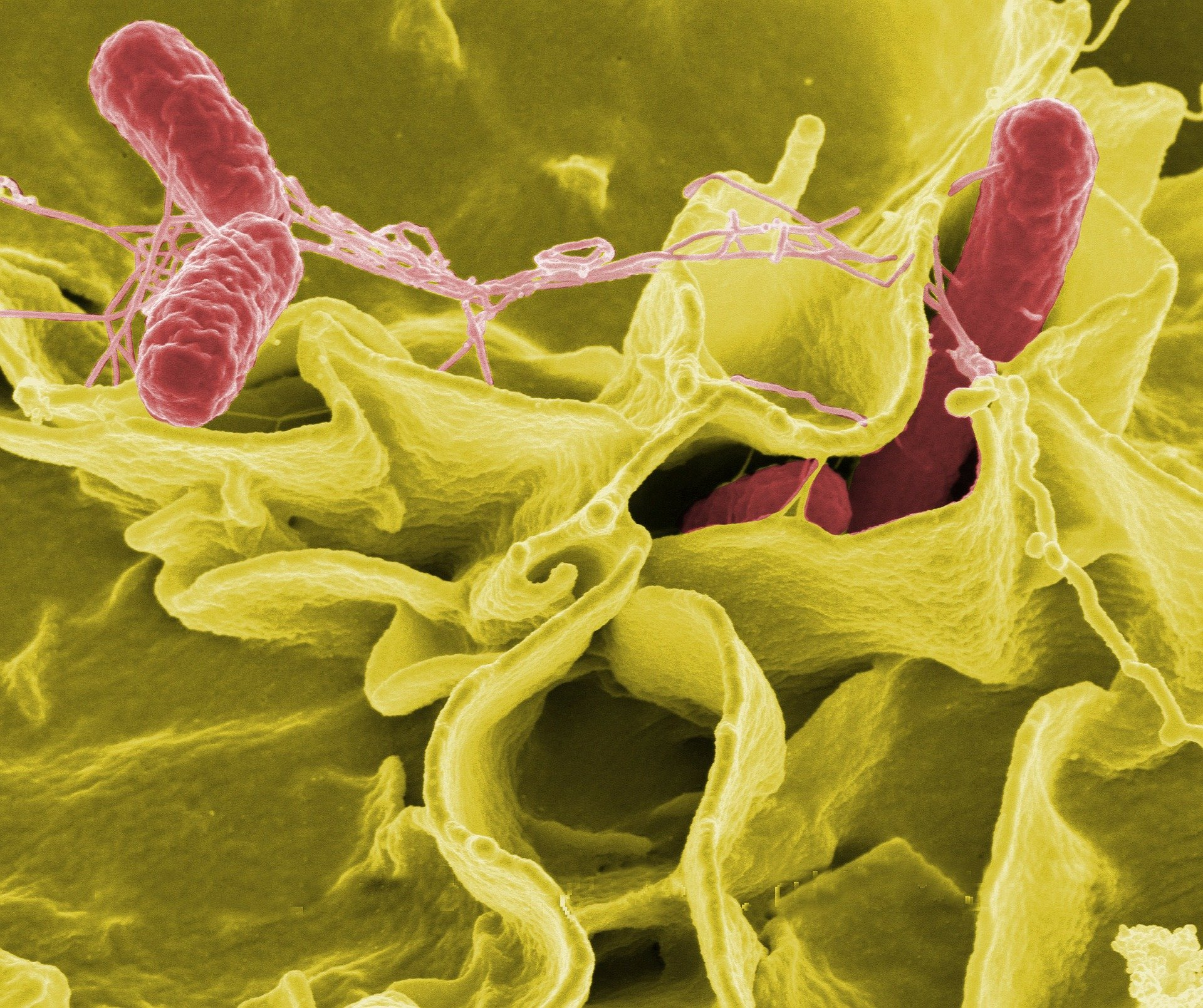Researchers uncover tools used by predatory bacteria to escape unharmed from prey cell