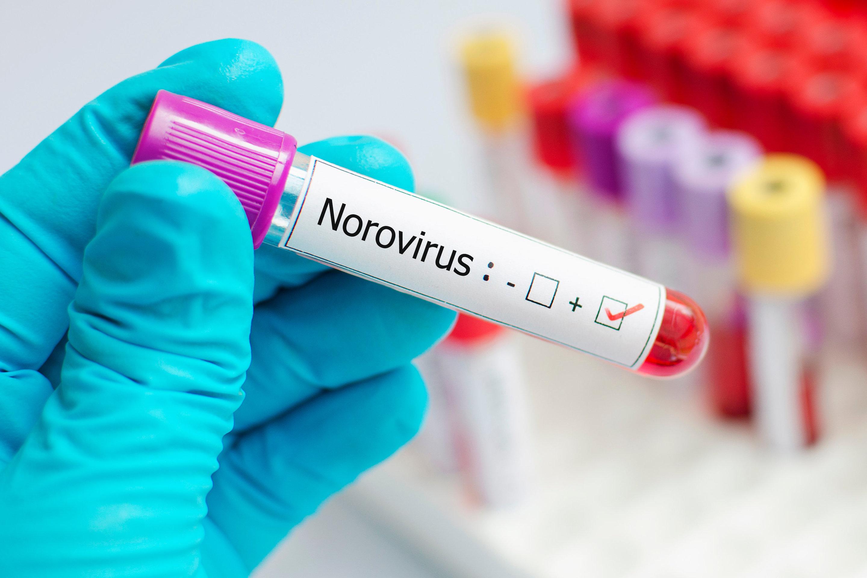 norovirus bug 2018