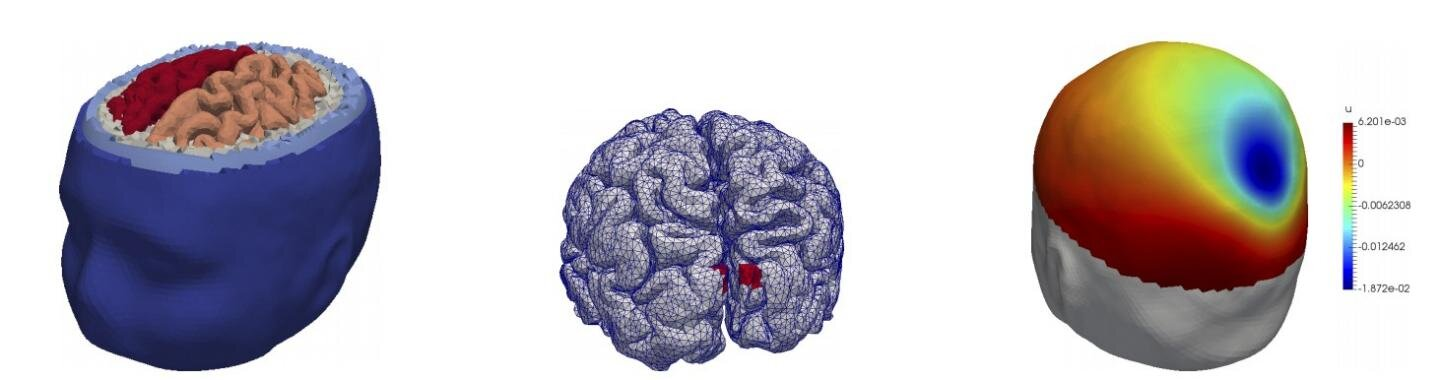 New research makes it easier to pinpoint brain...