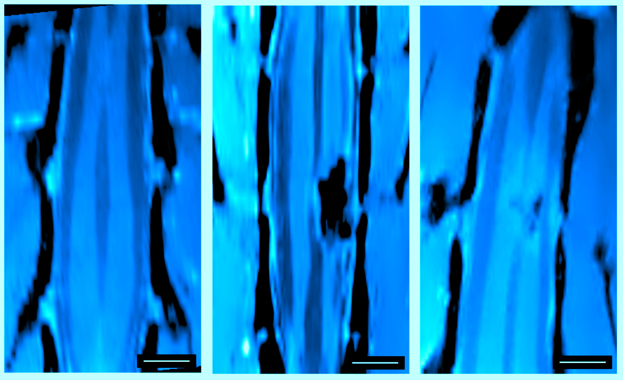 Neurons in spinal-cord injuries are reconnected in vivo via carbon nanotube sponges