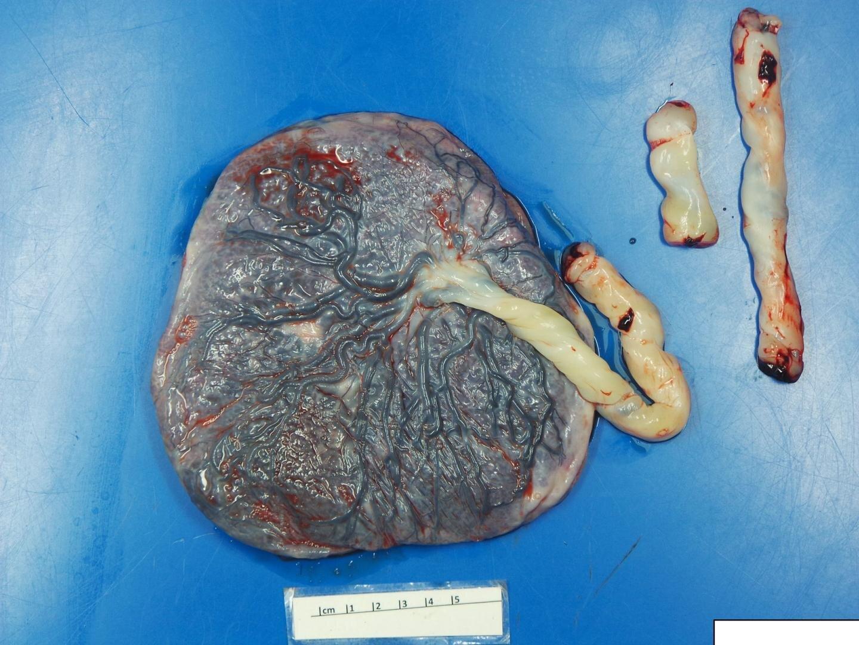 Плаценты беременных с Covid-19 имеют признаки повреждения кровотока