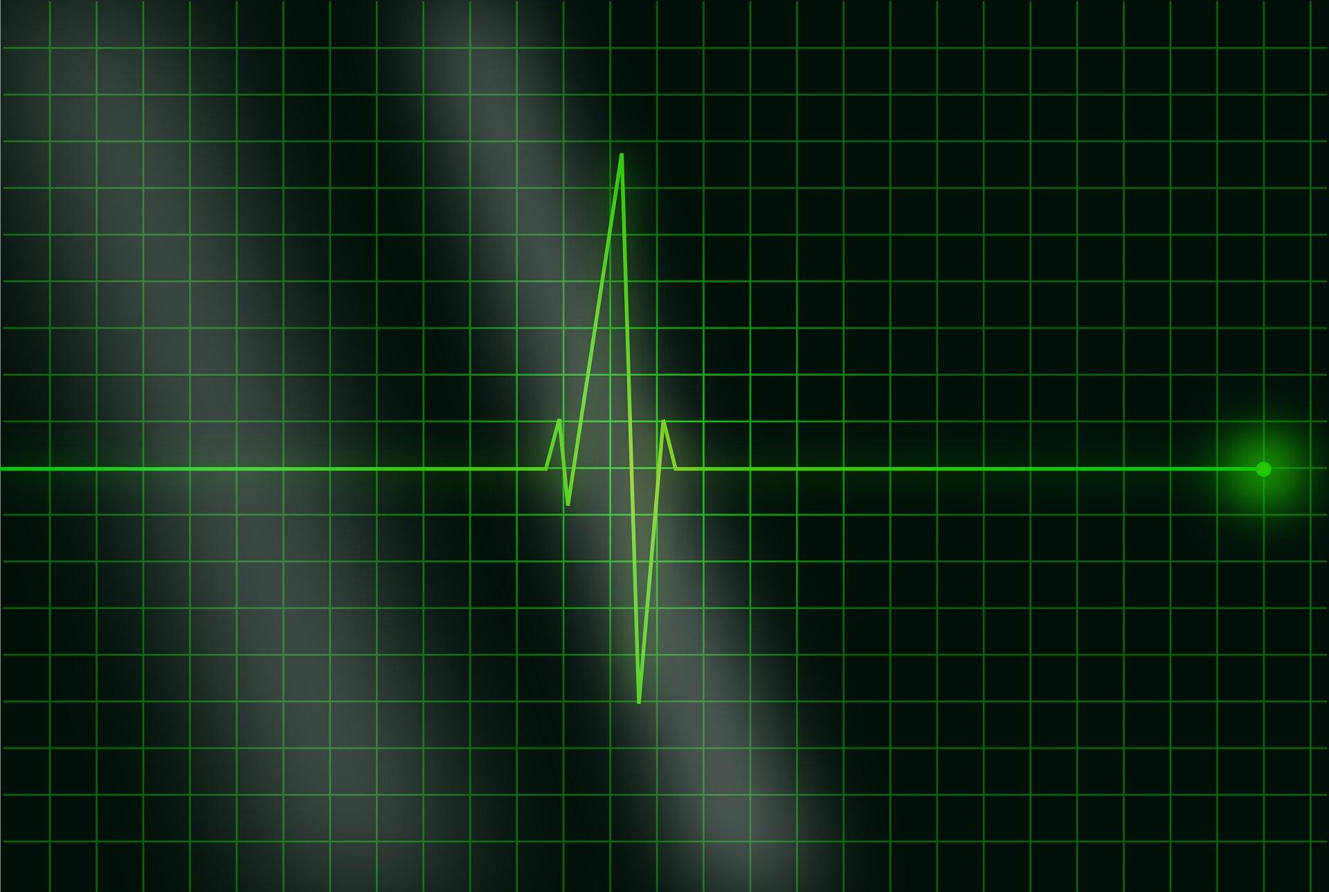 Sleep Apnea Worsens Heart Disease, Yet Often Untreated ...