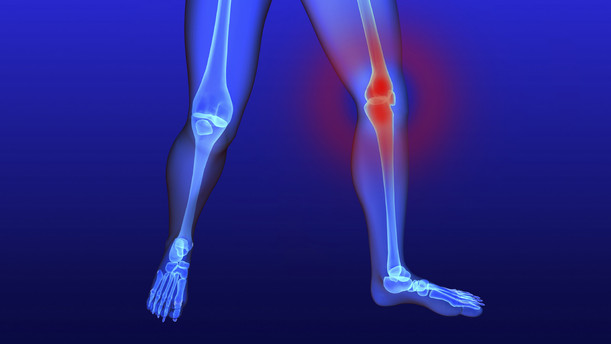 There's Hope for Debilitating Knee Pain